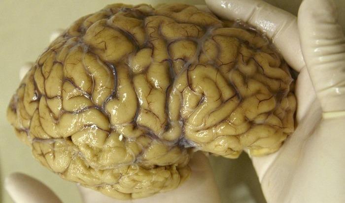Мозг человека: до 60% жира.