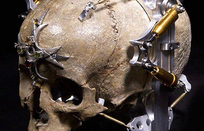 Человеческий череп. «Третий глаз» Уэйна Белгера.