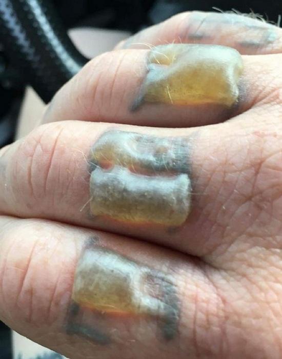 Обожженные пальцы во время лазерного удаления татуировки.