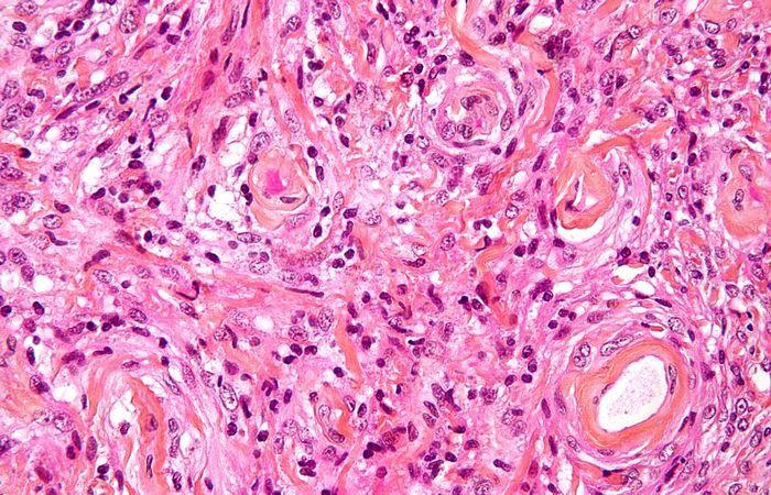 Выращено в лаборатории: мозговая ткань.