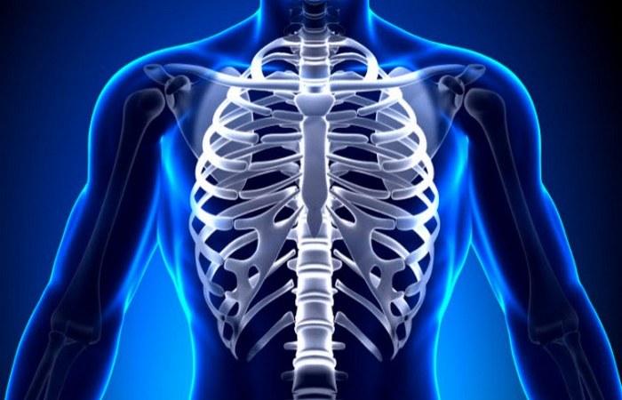 Ребра-протезы, отпечатанные на 3-D-принтере.