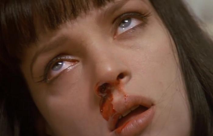 Ошибка: запрокидывать голову во время кровотечения из носа.
