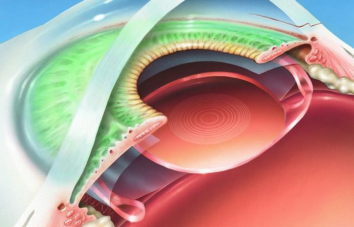 Изобретение 21 века: имплантат сетчатки.