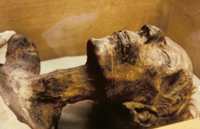 Мозг мумии остался нетронутым.