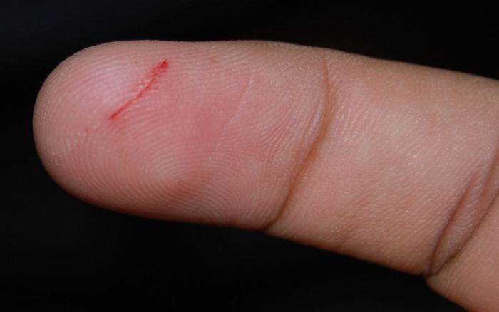 Маленький порез - большая опасность.