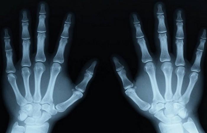 Неудачный прогноз о рентгеновских лучах.