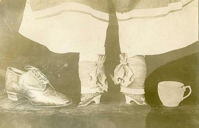 Бинтование ног - недоразвитые пальцы.