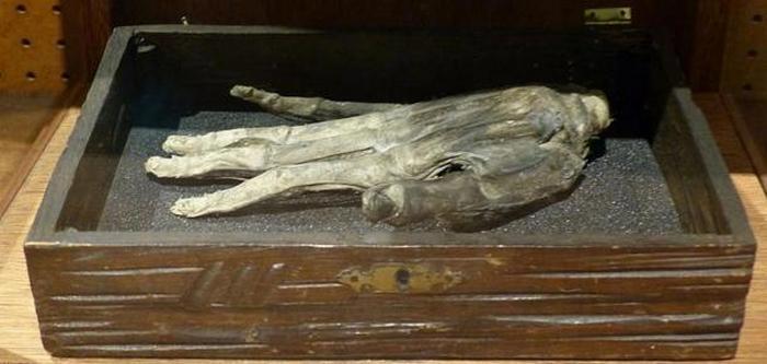 Мумифицированная рука из Йоркшира.
