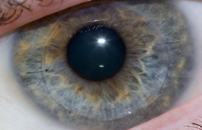 Глазные имплантаты, которые делают слепых зрячими.