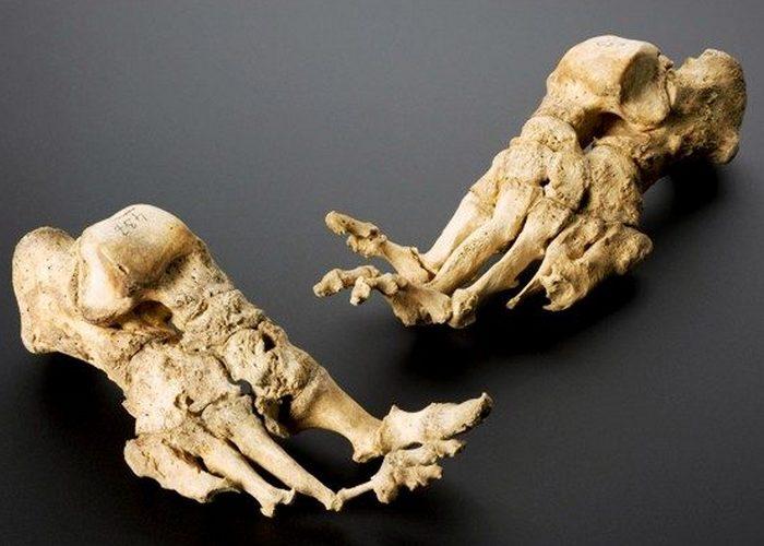 Жуткое захоронение: кости самого «старого» прокаженного.