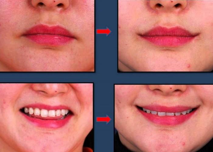 Странная хирургия: поднятие уголков рта.