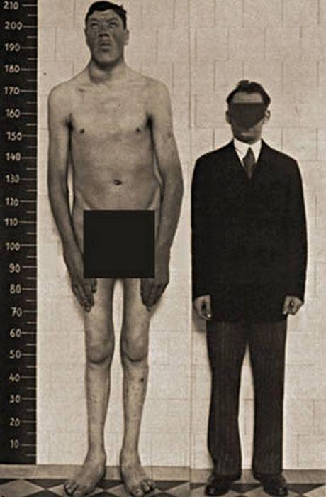 Самый-самый высокий карлик в мире.