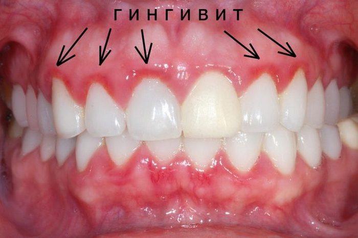 Чистка зубов и гингивит.