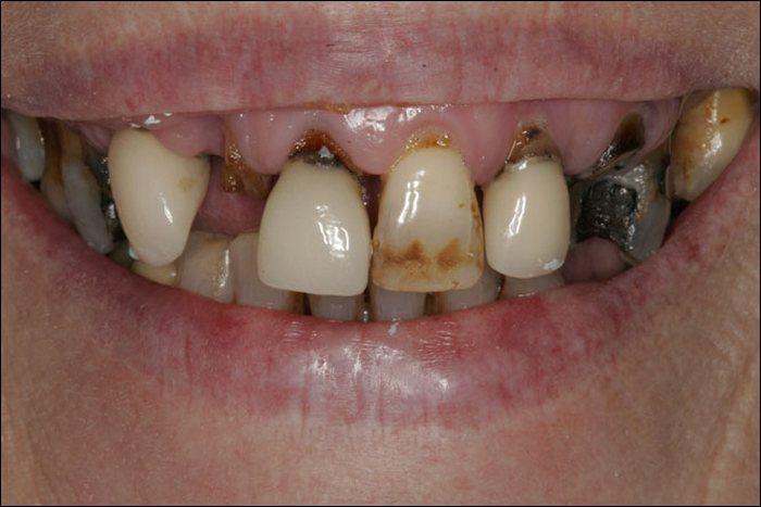 Чистка зубов и периодонтит.