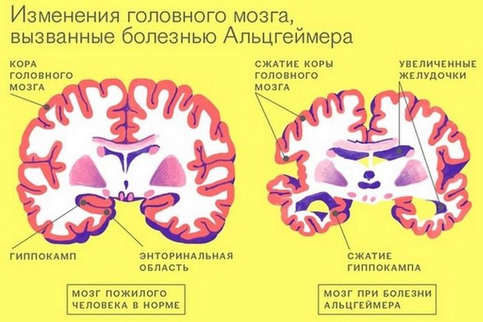 Чистка зубов и болезнь Альцгеймера.