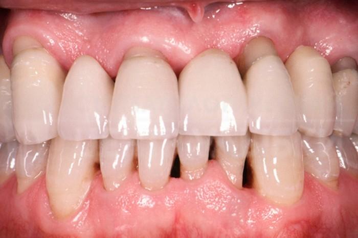 Чистка зубов и диабет.
