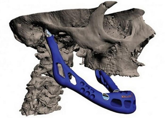 Вчерашняя фантастика: 3-D принтер создает челюсти для трансплантации.