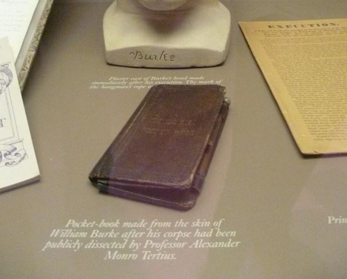 Книга из человеческой плоти (Хирургический музей патологий, Эдинбург, Шотландия)