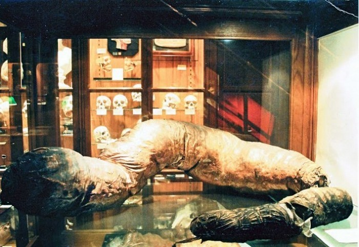 Гигантская толстая кишка (Музей Мюттер, Филадельфия, США)
