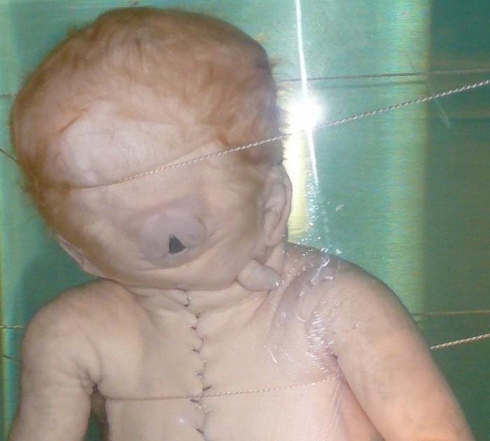 Ребенок-циклоп (Музей Фролик, Амстердам, Нидерланды).