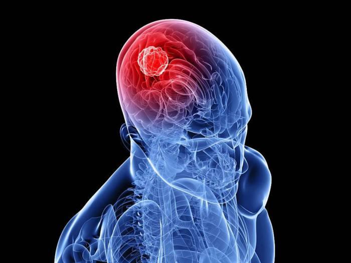 Повреждение височно-теменной доли может привести к ощущению выхода из тела.