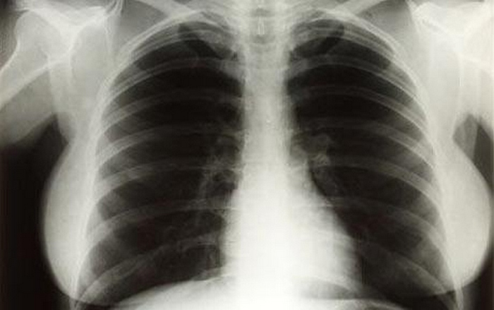 Рентген грудной клетки Мэрилин Монро.