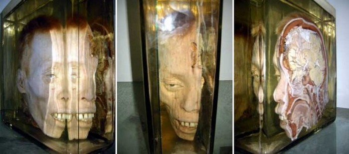 Голова жертвы огнестрельного ранения (Медицинский музей Сирираж, Бангкок).