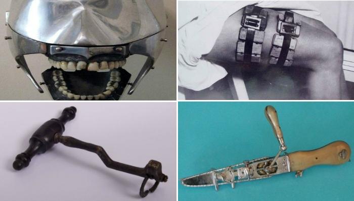 Самые ужасающие медицинские инструменты из прошлого.