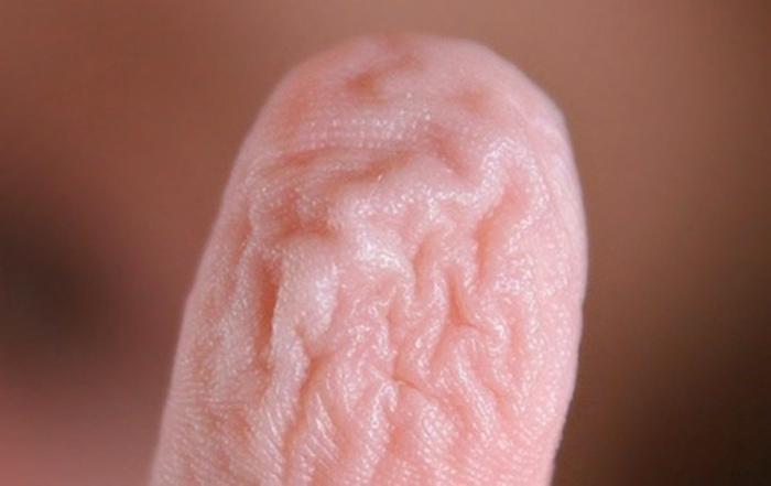 Морщины — это просто вазоконстрикции.