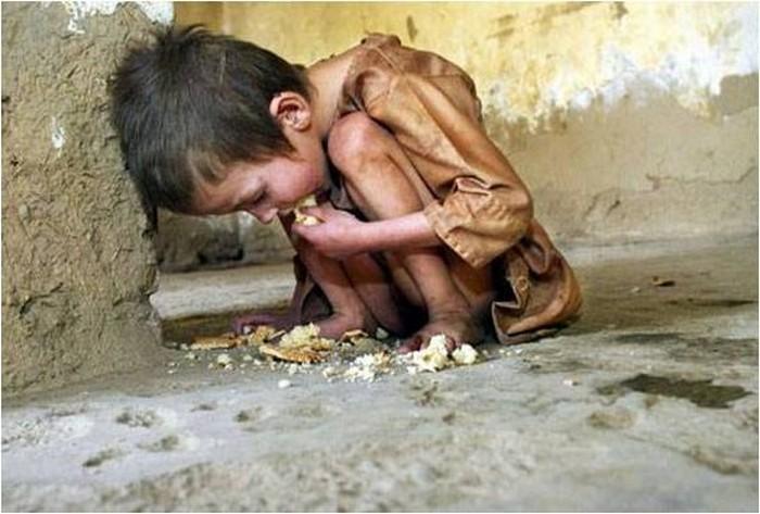 Голод как современная проблема человечества.