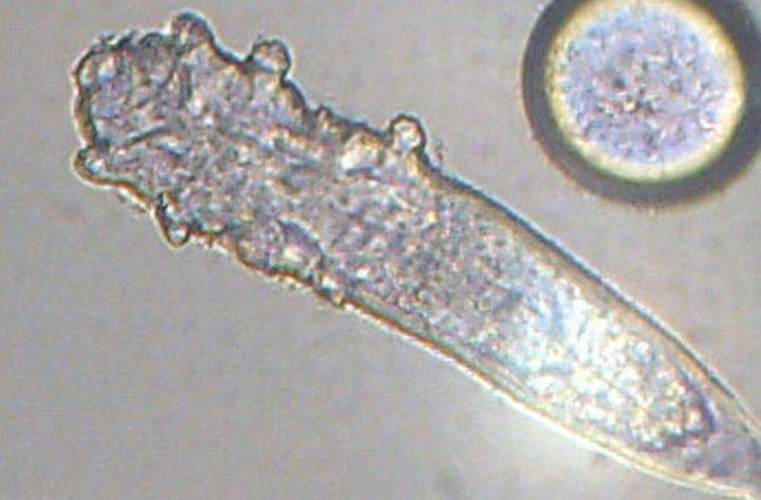 Лицевой клещ под микроскопом.