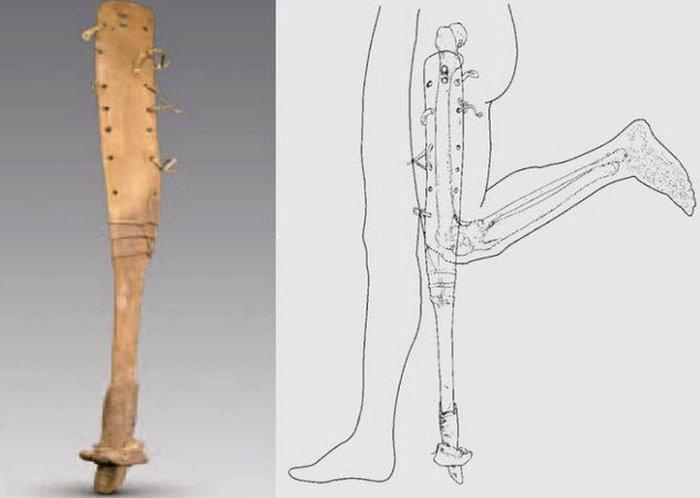Человеческий протез с копытом лошади.