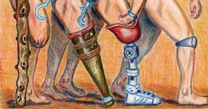 И при Геродоте были протезы.
