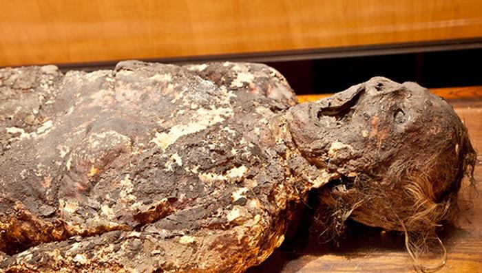 Труп, покрытый жировоском. Мыльная Леди, найденная в Финляндии в 1875 году.