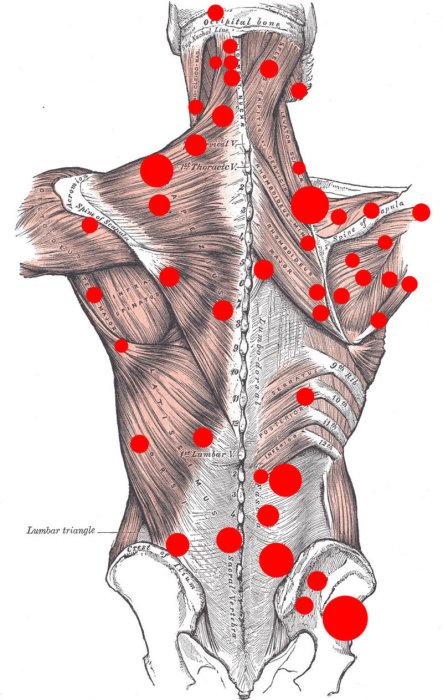 наличие триггерных точек приводит к дисфункции мышцы