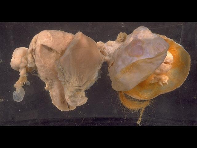 Тератомы яичников (Музей человеческих заболеваний, Сидней, Австралия)