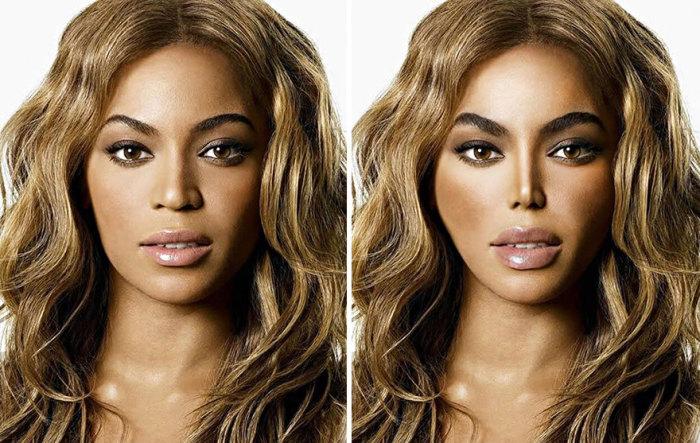 Так выглядело бы лицо известной американской певицы Бейонсе (Beyonce), если бы она легла под нож пластического хирурга.