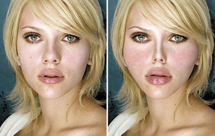 Так изменилось бы лицо известной американской актрисы Скарлетт Йоханссон (Scarlett Johansson), если бы над ее внешностью поработал пластический хирург.