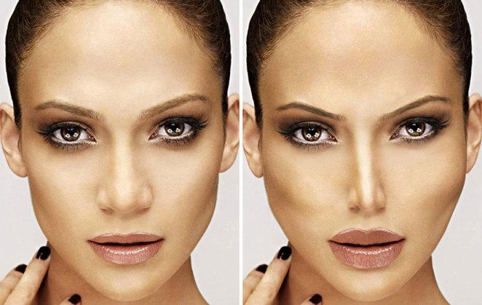 Так изменилась бы внешность известной певицы и актрисы Дженнифер Лопес (Jennifer Lopez), если бы она прибегла к услугам пластического хирурга.