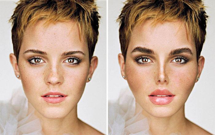 Так после пластических операций выглядела бы Эмма Уотсон (Emma Watson) - актриса, сыгравшая Гермиону Грейнджер в фильмах о Гарри Поттере.