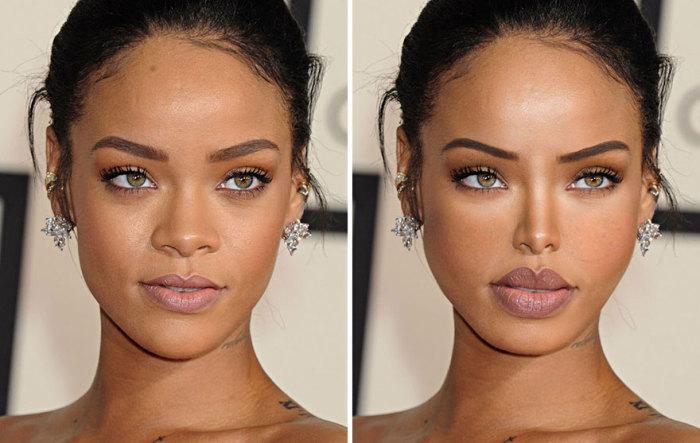 Так после пластических операций изменилось бы лицо известной певицы Рианны (Rihanna).