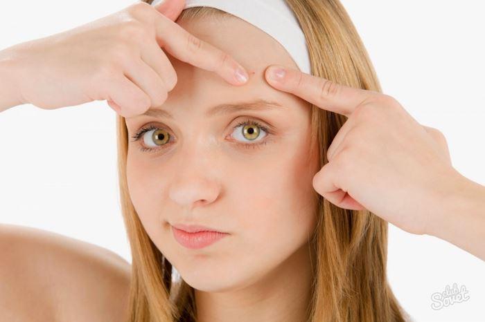 Пятый фактор, который негативно влияет на состояние кожи лица, - это борьба с воспалениями механическим путем.