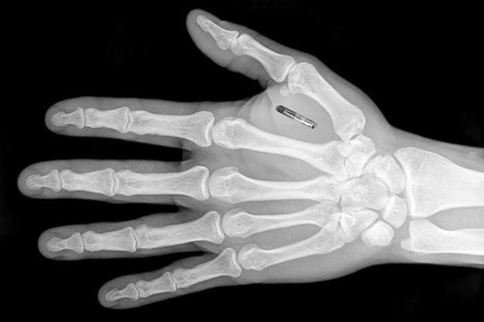 RFID-имплантат вместо пропуска