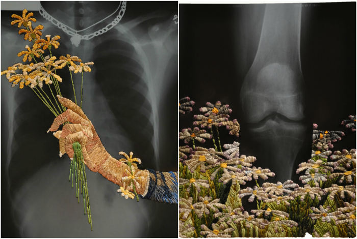 Композиции из нитей и рентгеновских снимков.