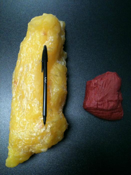 Два килограмма жира и два клограмма мышц.