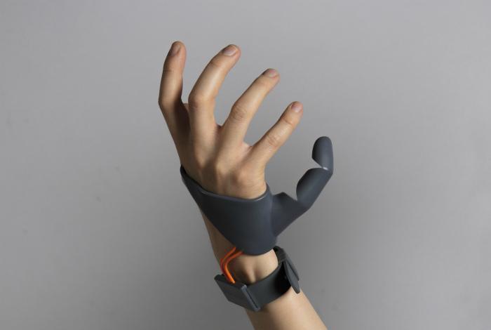 Протез дополнительного пальца.