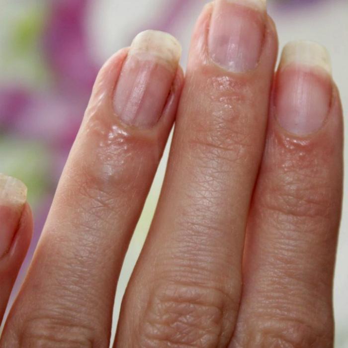 Аллергическая реакция на пальцах. | Фото: Главная.