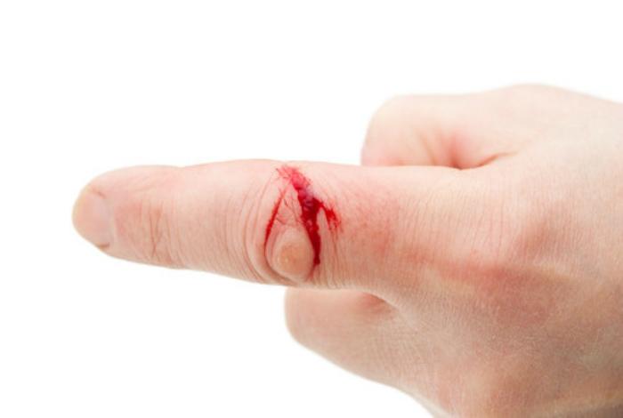 Остановить кровотечение.