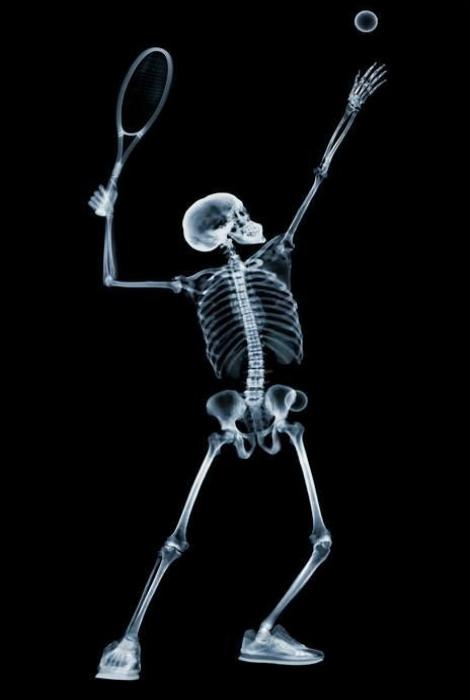 Теннисист в рентгеновской камере.
