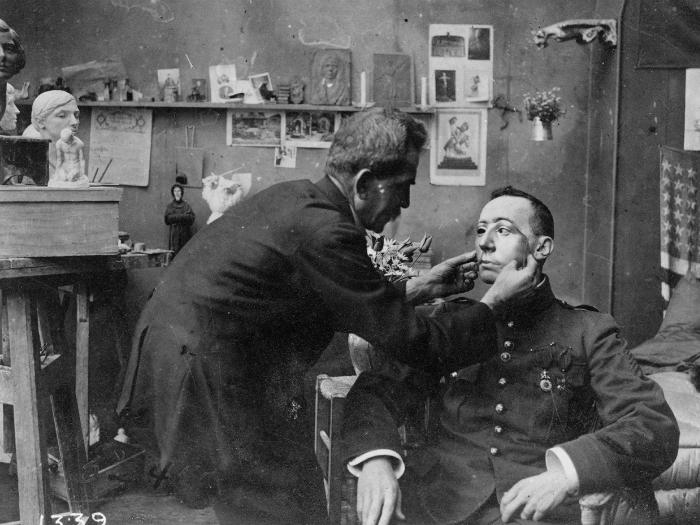 1918 год. Солдат, чье лицо сильно пострадало в Первой мировой войне примеряет маску, сделанную Красным Крестом.